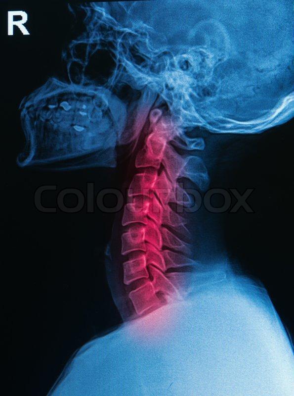 X-ray menschlicher Schädel und Wirbelsäule (Halswirbelsäule) zeigen ...