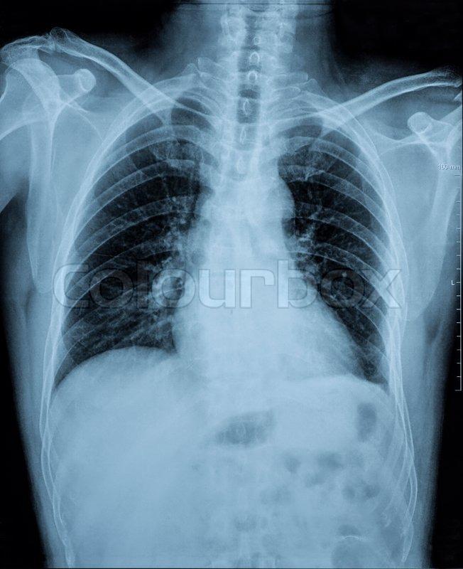 Röntgenbild von Anomalien menschlichen Wirbelsäule (Wirbelsäule) und ...