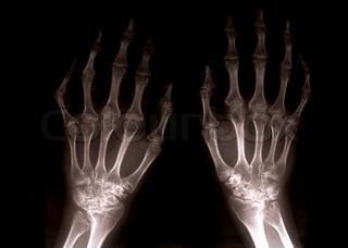 Billede af 'skelet, røntgenbillede, arm'