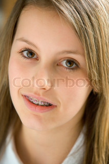 Image of 'braces, looking at camera, people'