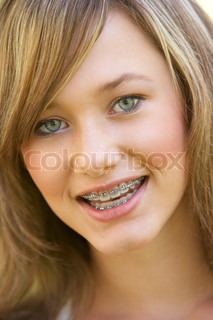 Image of 'braces, teen, make-up'