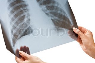 X-ray in hands isolated on white