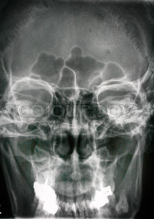 Side view head x-ray showing screws used to reconstruct the jaw bones.