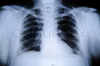 Image of 'clavicle, ray, x-ray'