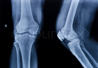 Image of 'knee, x-ray, x'