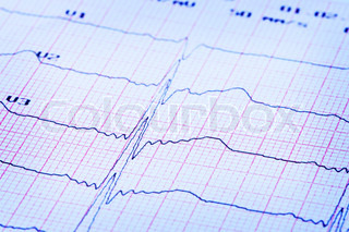 Cardiogram of heart on paper.