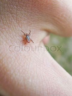 tick, ixodes ricinus, walking on the skin of a human