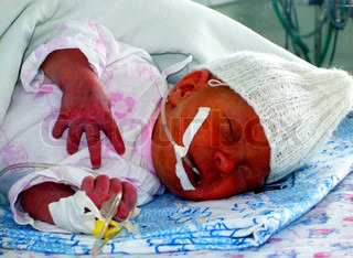 Infant in intensive care