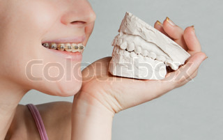 Bracket smile and plaster jaw model