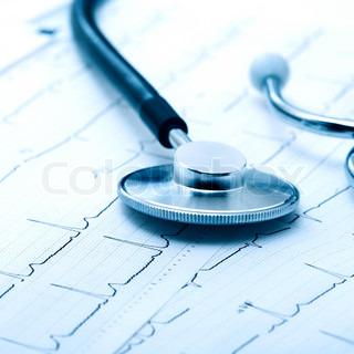 Stethoskop auf Elektrokardiogramm