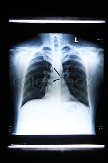 x-ray image of Screws in the esophagus of the body
