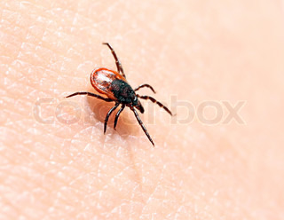 Ticks ​​on human skin. Ixodes ricinus can transmit both bacterial and viral pathogens such as the causative agents of Lyme disease and tick-borne encephalitis.