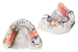 Plaster cast ofteeth and dentures
