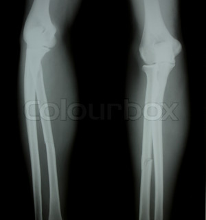 X-ray of both human legs broken legs