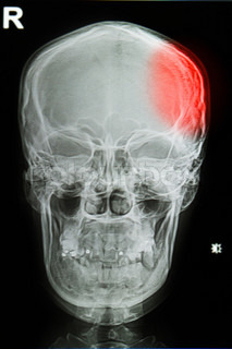 x-ray image of the painful or injury skull , head injury