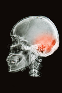 skull x-rays imagesagital plane show head injury