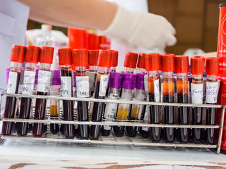 blood tubes in the laboratory