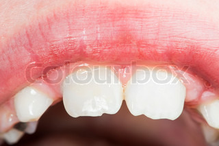 Children's mouth and teeth